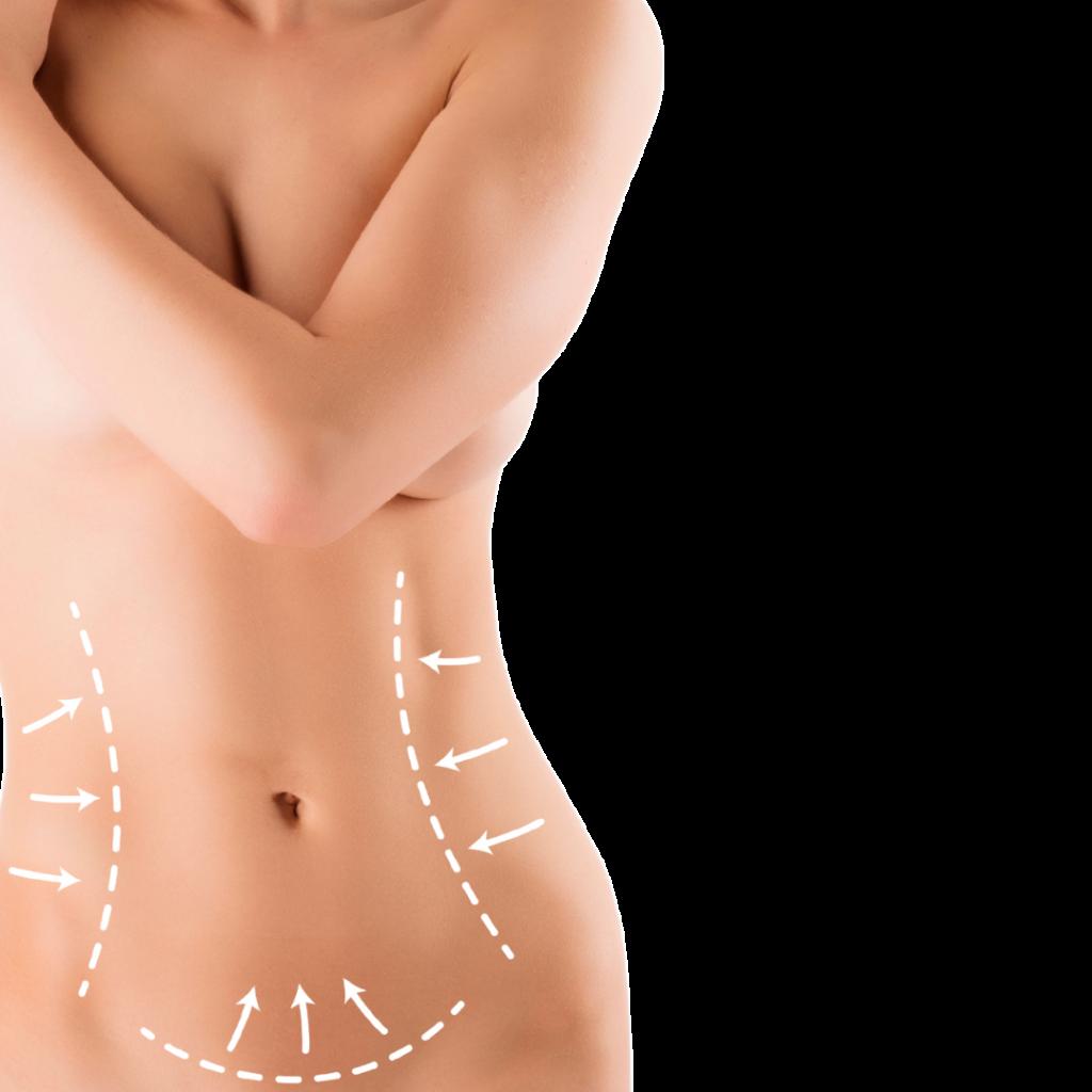cirurgia-estetica-corporal