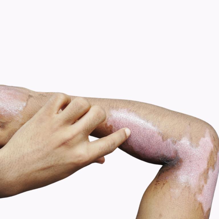 foto-representando-cirurgia-para-tratamento-de-pessoas-queimadas
